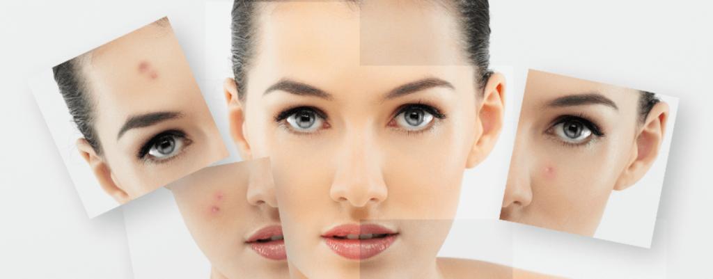 Cómo cuidar la piel grasa, mixta y con acnéCómo cuidar la piel grasa, mixta y con acné